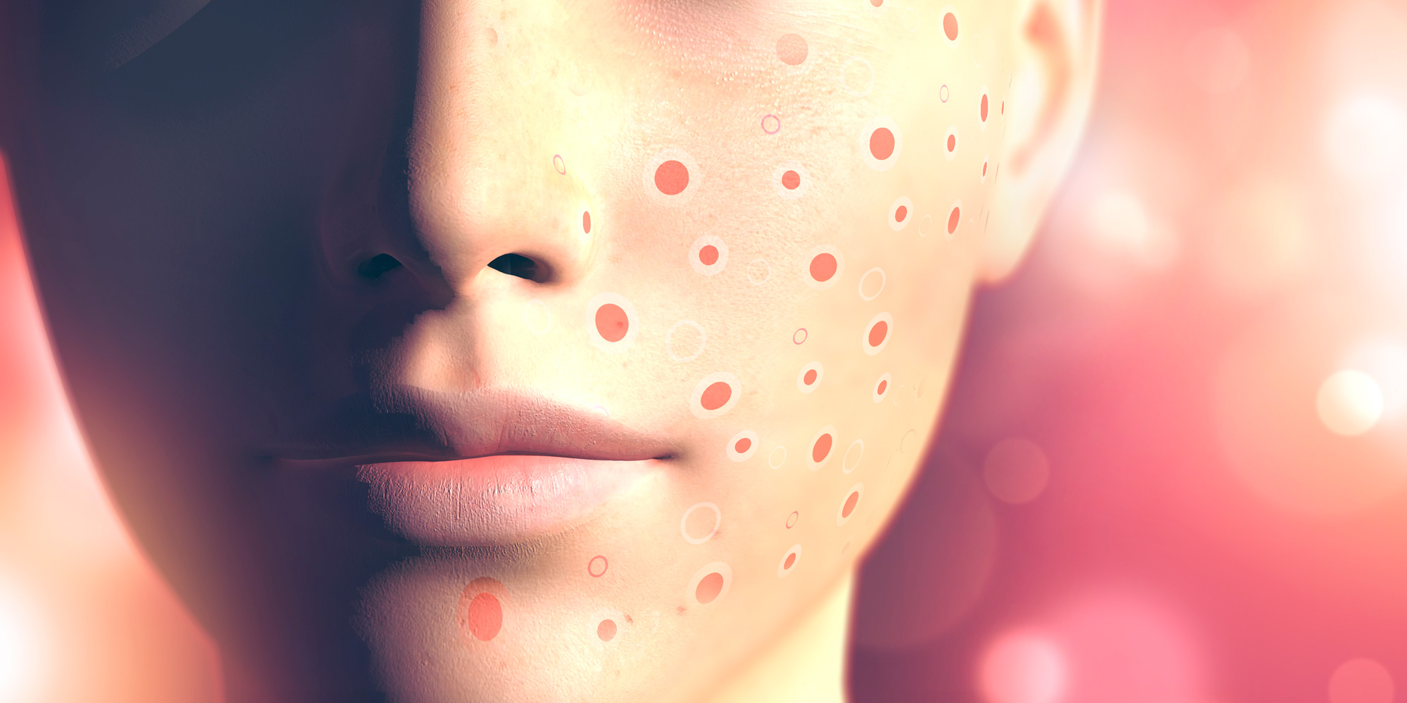 Prescribing Isotretinoin For Patients With Acne In Primary Care Best Practice Advocacy Centre New Zealand