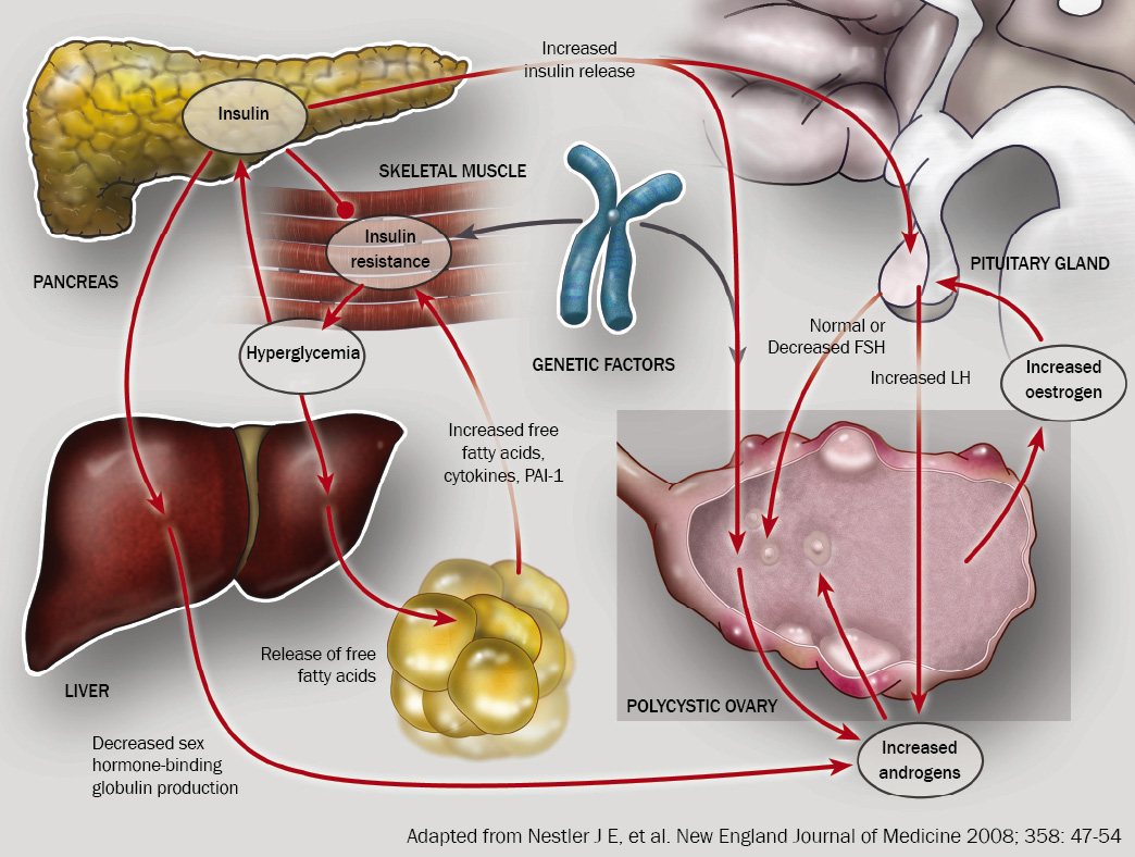 Communication on this topic: What Is Polycystic Ovary Syndrome, what-is-polycystic-ovary-syndrome/