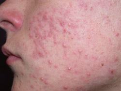 How To Treat Acne Bpj 20 2009