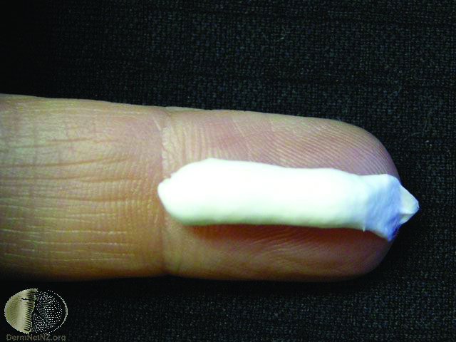 Topical Corticosteroid Treatment For Skin Conditions Bpj 23 September 2009