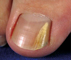 Distal And Lateral Subungual Onychomycosis Is The Most Common Morphology Of Fungal Nail Infection