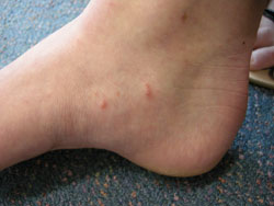 Scabies, diagnosis and management - BPJ 19 February 2009