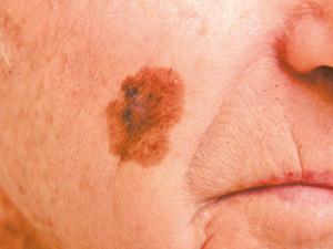 acral melanomas #11