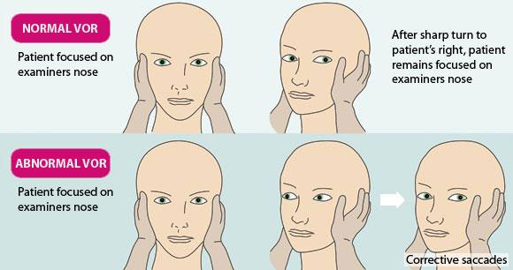 Vertigo Disease Treatment