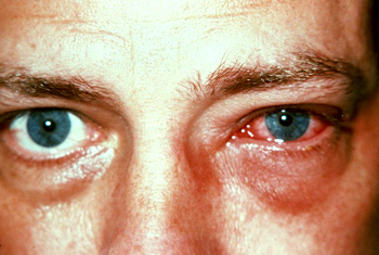 Chlamydia In The Eye Pics For > Episcler...