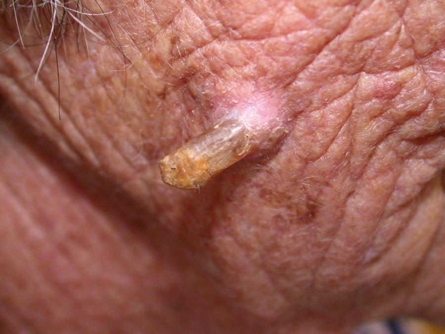 Managing non-melanoma skin cancer in primary care: A focus