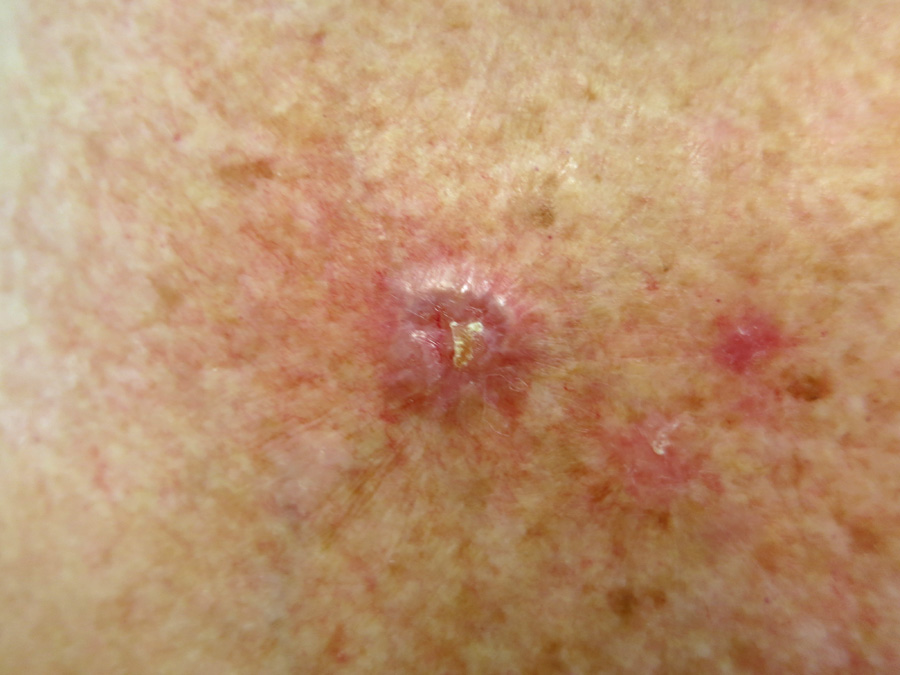 Managing Non Melanoma Skin Cancer In Primary Care A Focus On