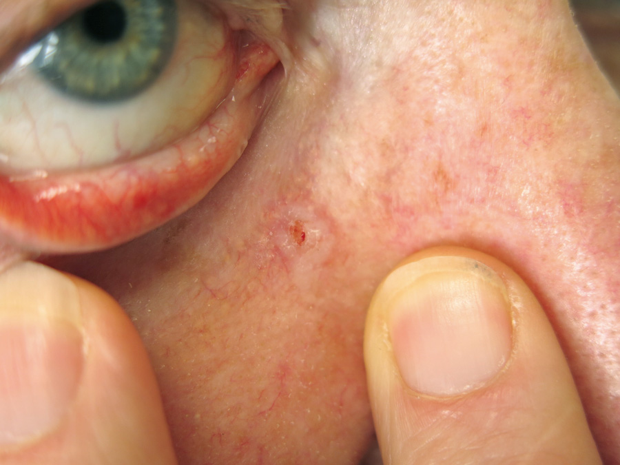 Picture of Basal Cell Carcinoma on the Nose - WebMD