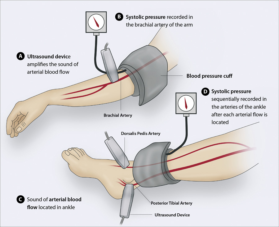 Figure 1 Sequentially Measuring The Brachial Systolic Pressure And Ankle In Posterior Tibial Dorsalis Pedis Arteries With A