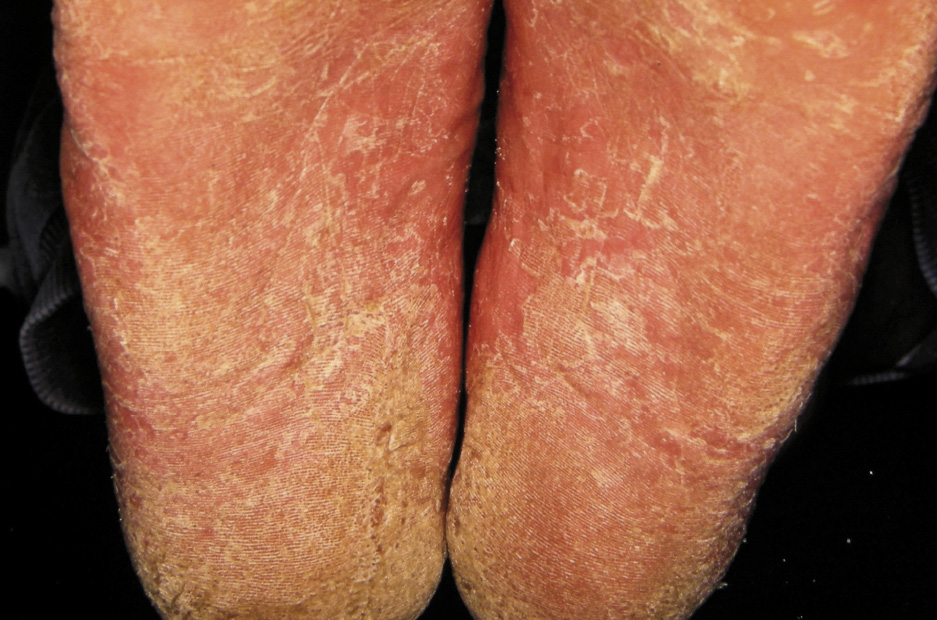 Tinea Pedis Not Just The Curse Of The Athlete Bpj65 December 2014
