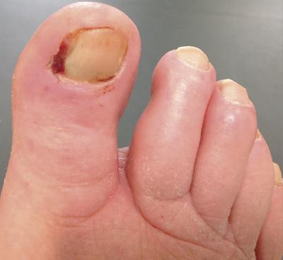 Ingrown toenails: digging out the facts - BPJ65 December 2014
