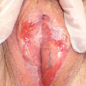 Vaginal discharge northwest ob