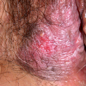 Anus redness lichen sclerosus