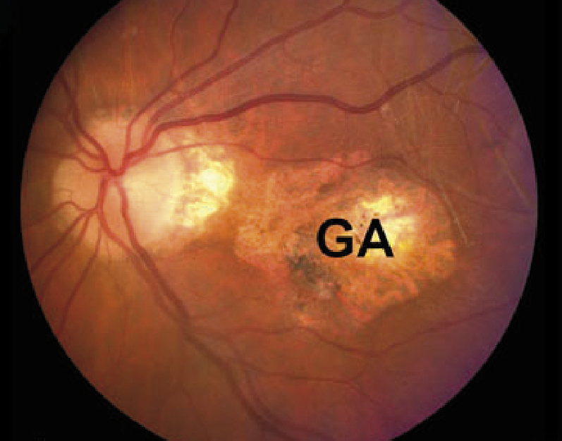 What changes can be seen on direct fundoscopy in patients with different stages of macular degeneration? : copper wiring eye - yogabreezes.com