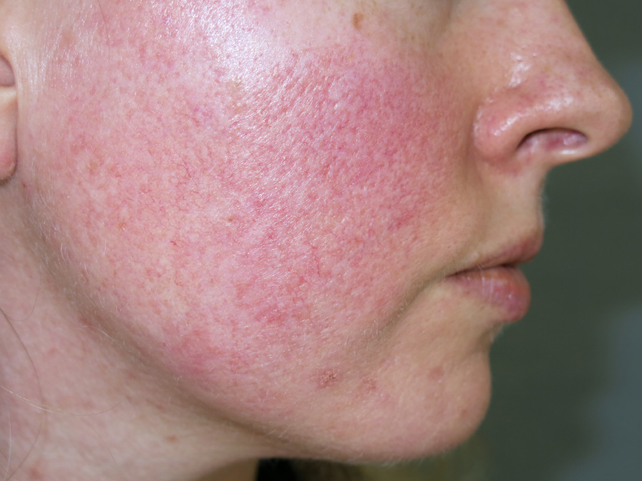 Rosacea Seeing Red In Primary Care Bpj 75 May 2016
