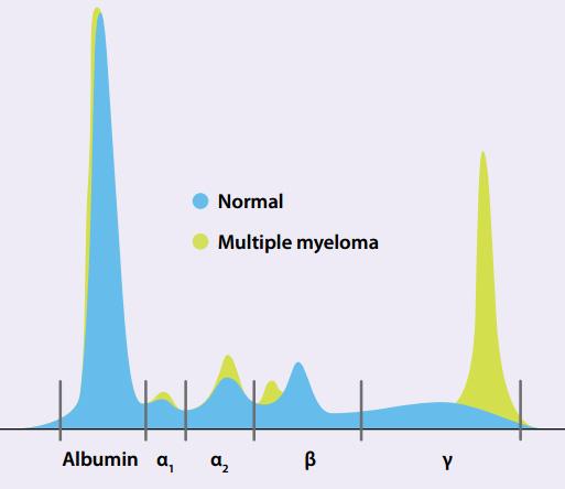 Making sense of serum protein bands - Best Tests July 2011
