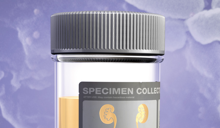 A pragmatic guide to asymptomatic bacteriuria and testing