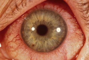 Red Ring Around My Eyeball