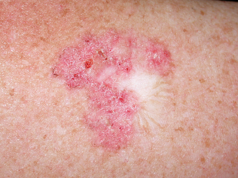 Managing Non Melanoma Skin Cancer In Primary Care A Focus On Topical Treatments Bpj 57 December 2013