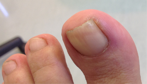 Ingrown toenails: digging out the facts - BPJ65 December 2014