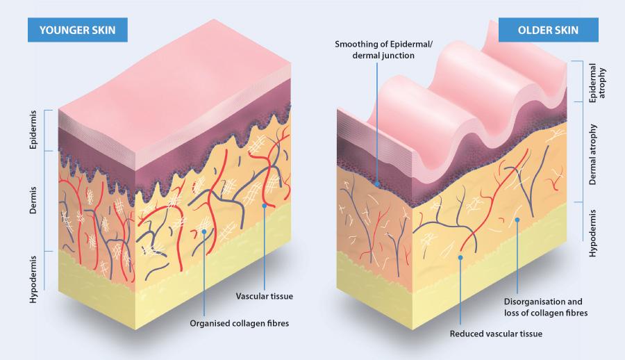 skindiagram preventing and managing dry skin in older people bpj63 september 2014