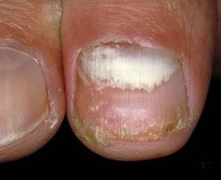 Superficial White Onychomycosis Proximal Subungual Onychomycosis Treatment